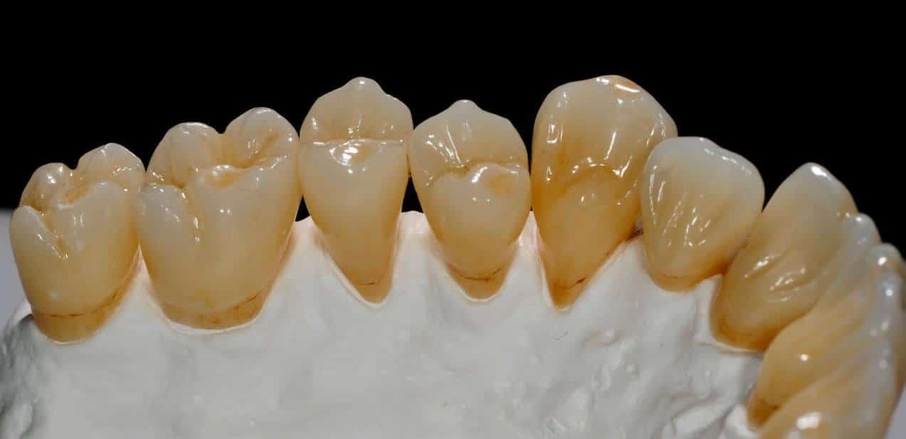 5 reasons dentists choose Avant Aesthetic Zirconia image