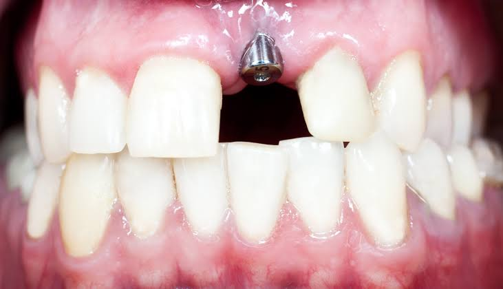 Troubleshooting guide for dental implants image