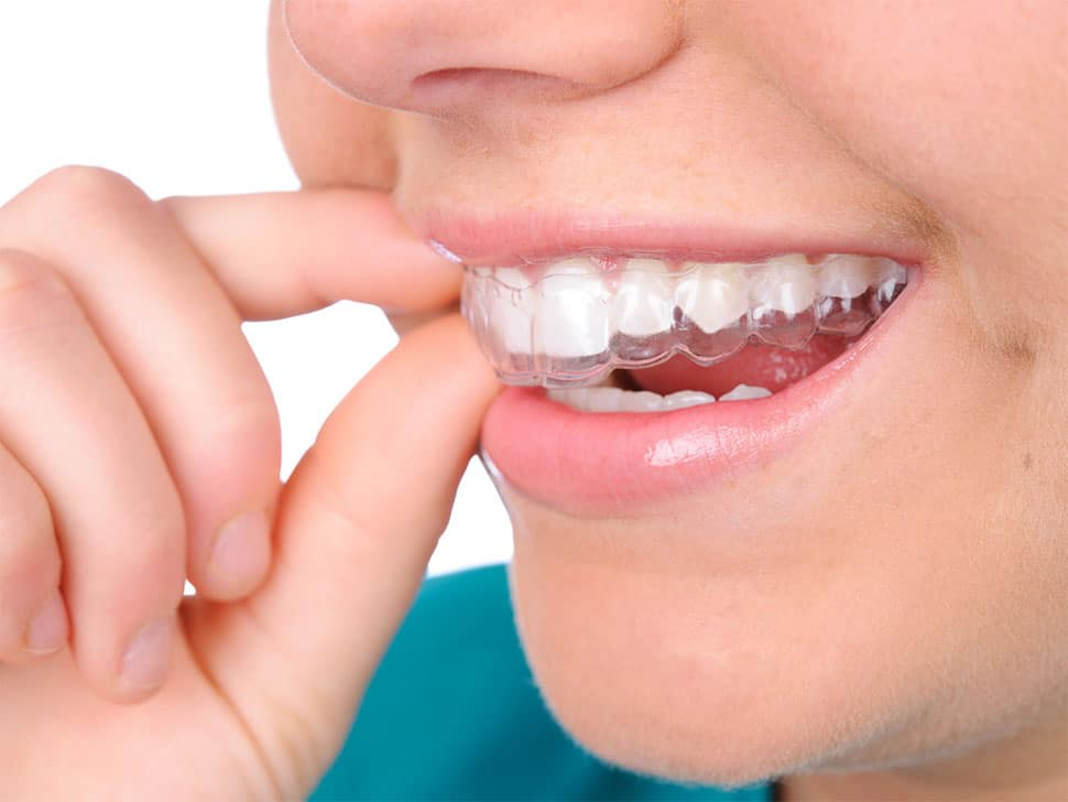 How partnering with Avant Dental for your post orthodontic retainers can benefit your practice image